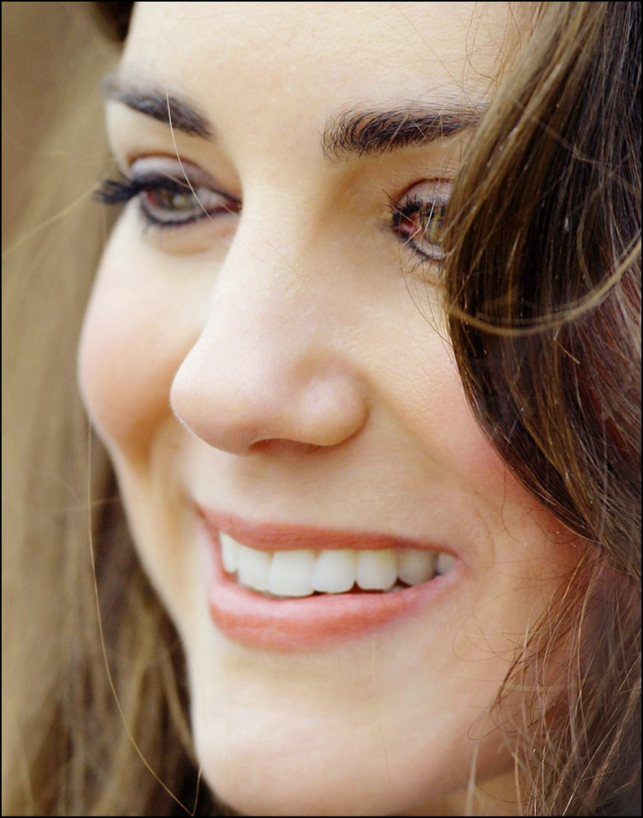 Close Up Portrait Of A: 16 High Resolution Close-up Pictures Of Kate Middleton